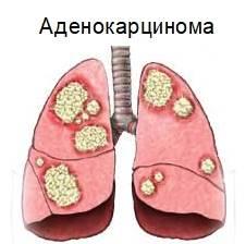 Аденокарцинома: прогноз, симптомы, стадии и лечение
