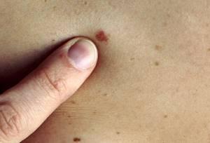 Меланома: фото начальной стадии, симптомы, прогноз жизни и лечение