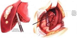 Холангиокарцинома: симптомы, прогноз и лечение печени