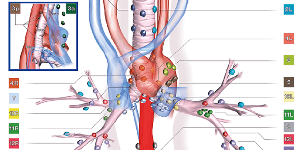 Немелкоклеточный рак лёгкого: симптомы, лечение, прогноз, 4 стадия
