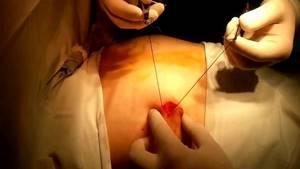 Может ли фиброаденома молочной железы перерасти в рак