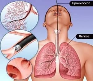 Бронхоскопия: как делают, виды, подготовка к диагностической бронхоскопии лёгких, нужен ли наркоз