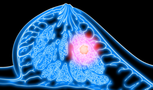 Метастазы рака молочной железы: куда метастазирует, симптомы и лечение