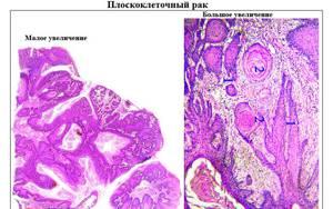 Плоскоклеточный рак: виды, причины, симптомы, прогноз и лечение