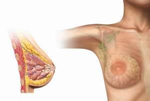 Фиброзно-жировая инволюция молочных желёз: симптомы, лечение, р-признаки