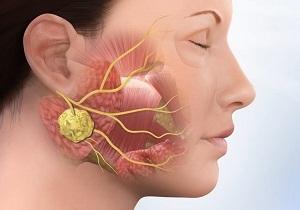 Карцинома слюнной железы: причины, симптомы, прогноз жизни после операции