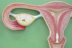 Миоматозный узел: виды, размеры, лечение и удаление