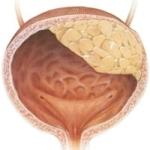 Опухоль лёгких: симптомы, виды, лечение, операция по удалению и стадии