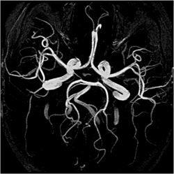 Коронарография сосудов головного мозга