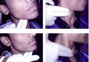 Воспаление лимфоузлов на шее: лечение, причины, симптомами каких заболеваний является, фото