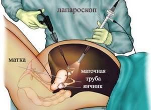 Фиброма яичника: чем опасна, симптомы, лечение и необходимость операции