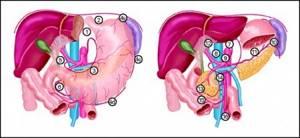 Метастазы в лимфоузлах: прогноз срока жизни, симптомы и лечение