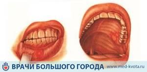 Рак полости рта: фото начальной стадии, симптомы, лечение и прогноз