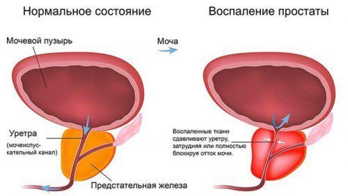 Лечение аденомы простаты народными средствами: самые эффективные методы