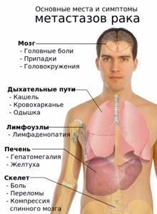 Рак носоглотки: симптомы, лечение, стадии и прогнозы при первых признаках