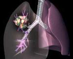Аденокарцинома лёгкого: стадии, прогноз, симптомы и лечение