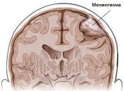 Анапластическая менингиома: прогноз жизни, симптомы и лечение