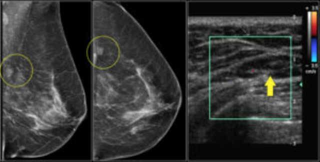 Интрамаммарный лимфоузел молочной железы: причины возникновения, опасность и лечение