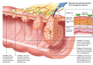 Чем отличается злокачественная опухоль от доброкачественной: по опасности и на УЗИ