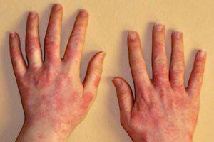 Эозинопения: причины, симптомы, лечение и диагностика