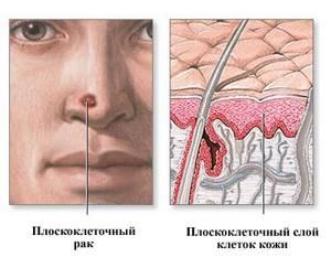 Плоскоклеточный рак кожи: фото начальной стадии, лечение, симптомы, прогноз и метастазы