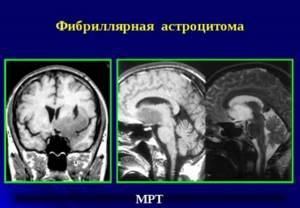 Астроцитома головного мозга: анапластическая, пилоцитарная, фибрилярная и диффузная