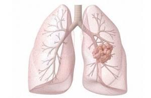 Температура при раке лёгких: причины, что делать и как помочь