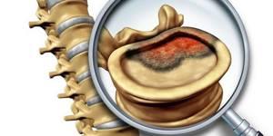 Боли при раке желудка: где и как болит, характер боли при метастазах