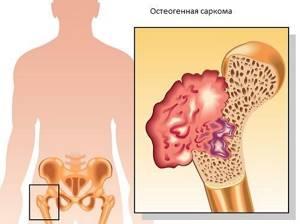 Рак рёбер: симптомы, причины, лечение, прогноз и фото