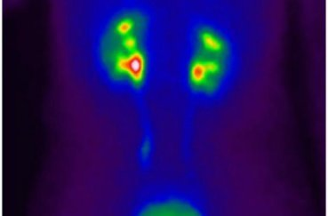 Радиоизотопное исследование: виды, подготовка, вред здоровью
