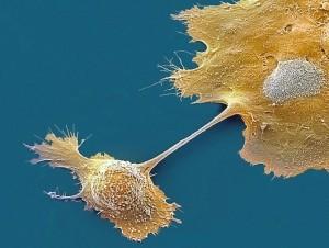 Анализ на рак шейки матки: какие сдают, расшифровка результатов