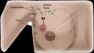 Стадии рака: классификация, все этапы и степень тяжести