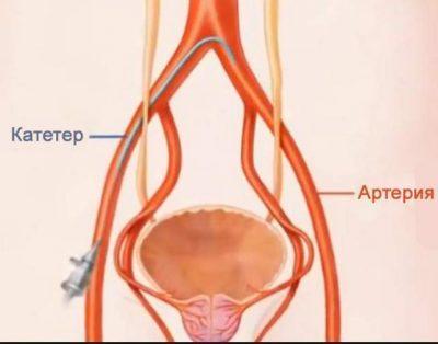 Эмболизация: виды, применение при лечении маточных артерий, простаты, сосудов