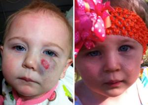 Гемангиома у детей: лечение, удаление, фото и причины возникновения