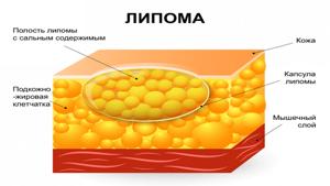 Жировики на теле: фото, причины, как избавиться, опасные последствия