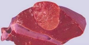 Аденома печени: симптомы, лечение, диагностика