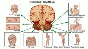 Бластома: симптомы, прогноз, лечение, стадии и причины возникновения
