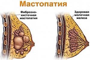 Диффузная кистозная мастопатия: чем опасна, лечение и симптомы