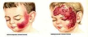 Гемангиома у новорождённых: причины возникновения, фото и лечение
