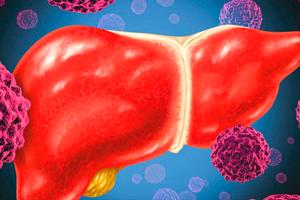 Гепатоцеллюлярный рак печени: лечение, прогноз, симптомы и диагностика
