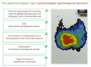 Сцинтиграфия щитовидной железы: как проходит исследование, подготовка, противопоказания и результаты