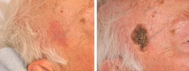 Старческая кератома: фото, симптомы и лечение