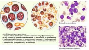 Миелолейкоз: симптомы, лечение, анализ крови, стадии и прогноз жизни