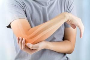 Синовиома: симптомы, причины развития в коленном, локтевом суставе и кисти рук