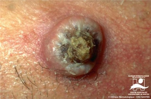 Кератоакантома: симптомы, стадии, диагностика и лечение