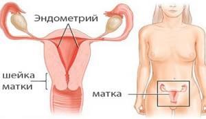 Аденокарцинома матки: прогноз, симптомы, стадии, операция и лечение