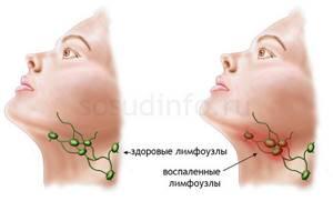 Лимфоузлы средостения: увеличены, норма, размеры, симптомы поражения, расположение
