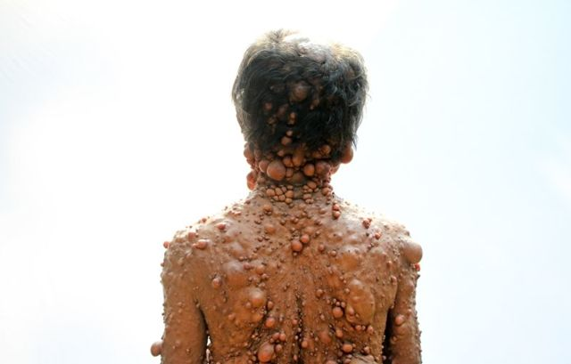 Нейрофиброматоз: типы, фото, лечение, симптомы, стадии и диагностика