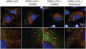 Раковые клетки: виды, как образуются, выглядят, чего боятся, причины появления и роста