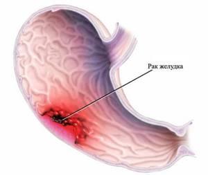 Рак желудка: первые симптомы, лечение, диагностика на ранних стадиях, прогноз жизни